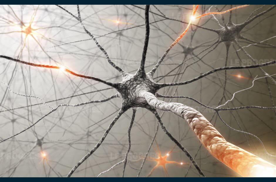 Sclérose en plaques : définition, cause, traitement