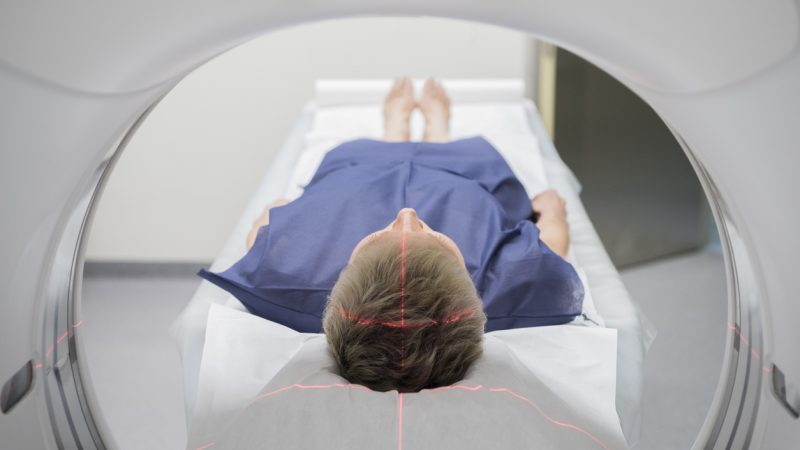 Suivi radiologique et IRM – Sclérose en plaques